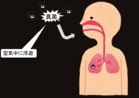 アスペルギルス症